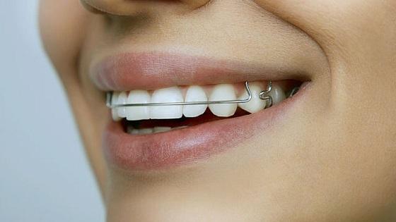 aparatic-za-zube
