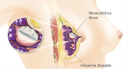 fibrocisticne_dojke