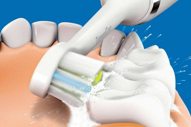 Sonična četkica za zube