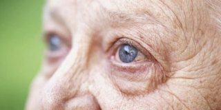 Siva mrena (katarakta) – kako je prepoznati i liječiti