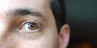 Crvena mrlja u oku – uzroci, simptomi, liječenje