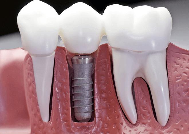zubni-implantanti