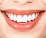 izbijeljivanje-zubi