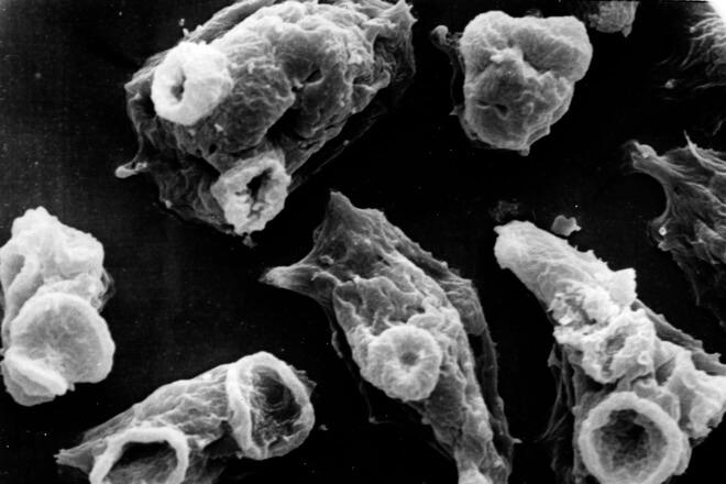 ameba parazit mozak