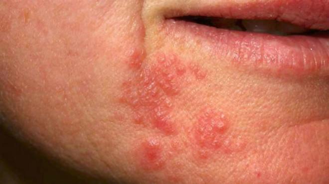 perioralni_dermatitis2