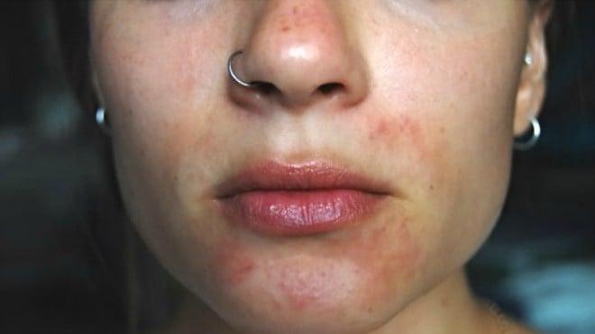 perioralni_dermatitis4