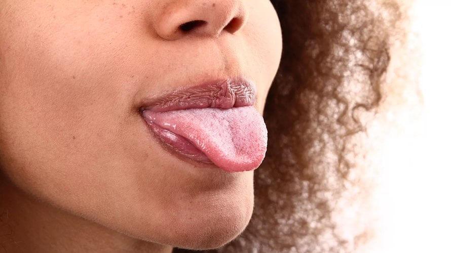 vene ispod jezika