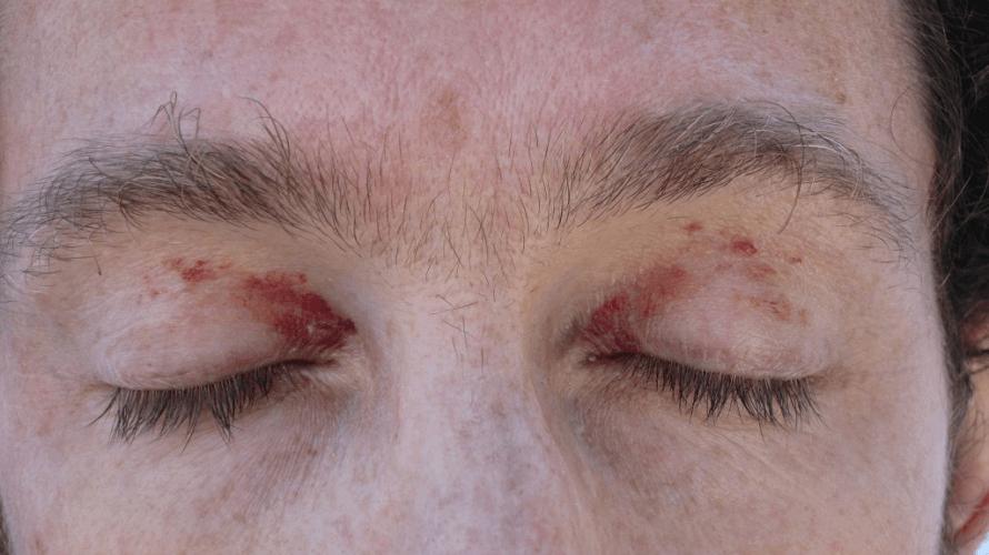 crvene-tockice-na-ocima