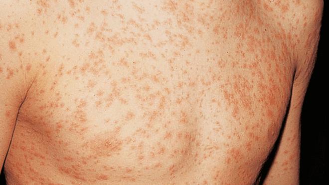reumatska-groznica