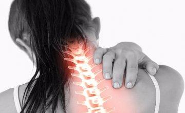 cervikobrahijalni-sindrom
