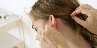 Kvržica iza uha – 8 uobičajenih vrsta i njihovi uzroci