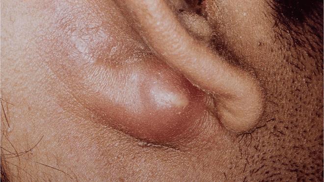 mastodoitis
