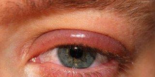 Blefaritis – uzroci, simptomi i liječenje