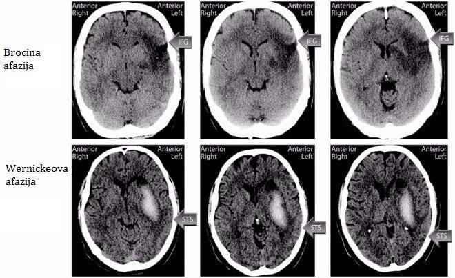 ct-mozga-kod-afazije
