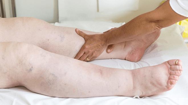 limfna-drenaza-nogu
