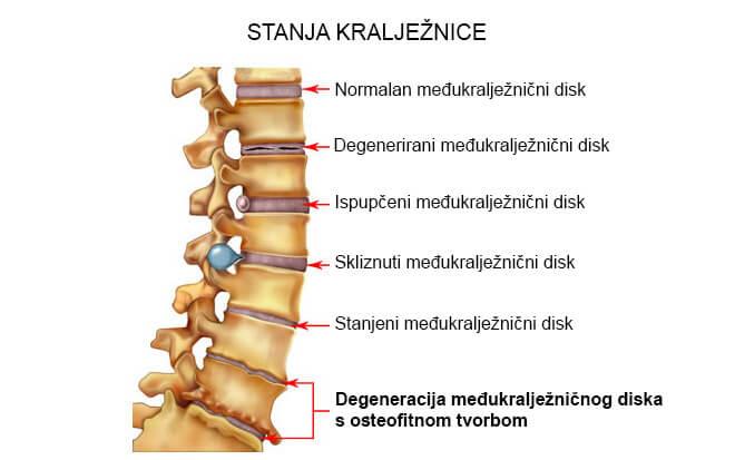 osteohondroza