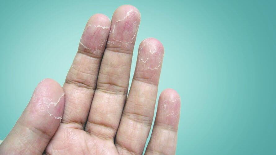 Perutanje kože