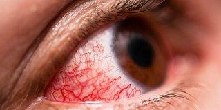 Pucanje kapilara u oku – uzroci, simptomi i liječenje