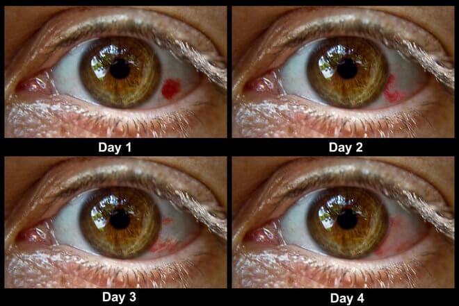 http://www.krenizdravo.net/zdravlje/bolesti-zdravlje/glaukom-uzroci-simptomi-i-lijecenje