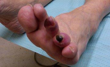 gangrena-prsta