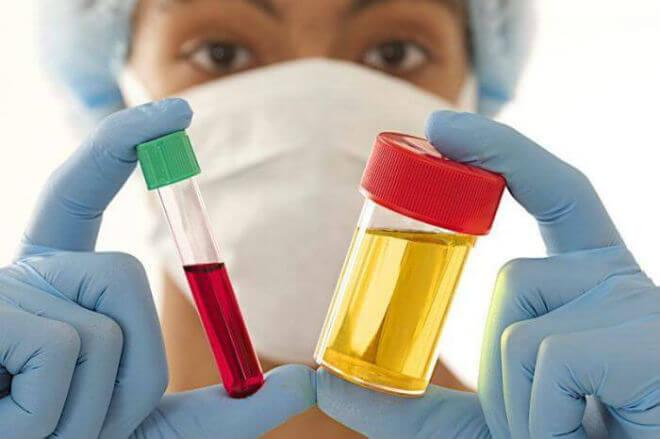 Amilaza u krvi i urinu