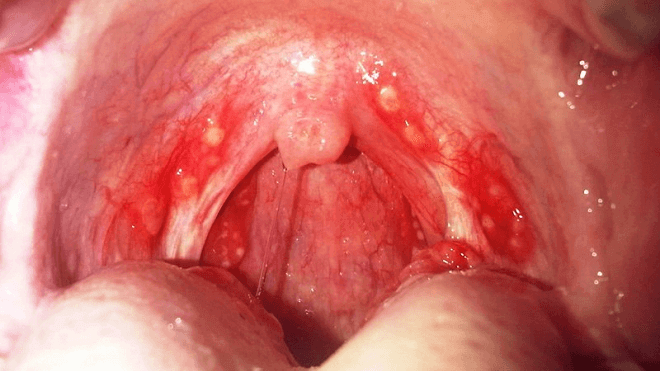bakterijska-upala-grla