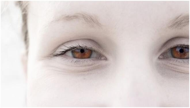 boja ociju albinizam