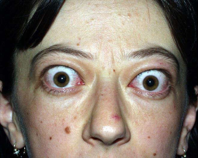 buljave oči