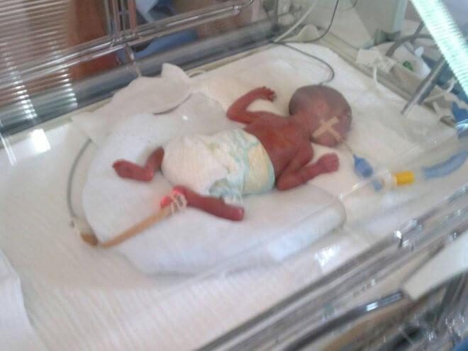 Djeca Palčići inkubator