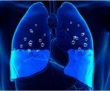 Edem pluća