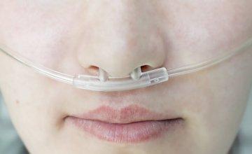 Fibroza pluća