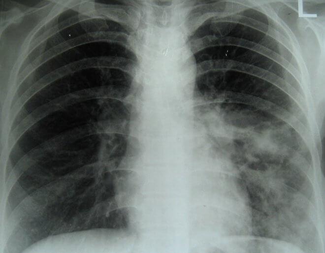 Rendgen fibroze pluća