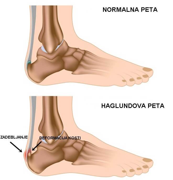 haglundova deformacija
