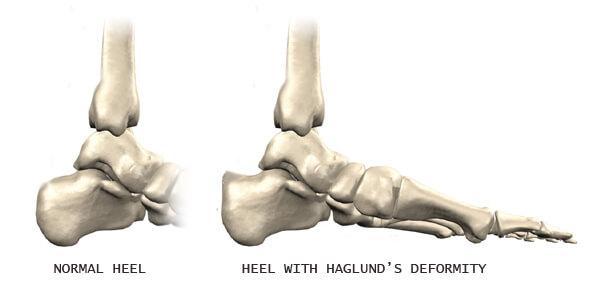 haglundova peta simptomi