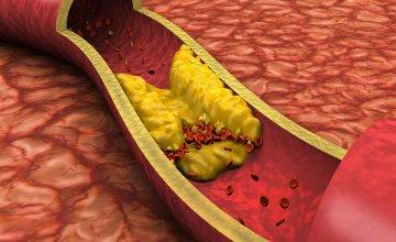 Hiperkolesterolemija u krvnim žilama