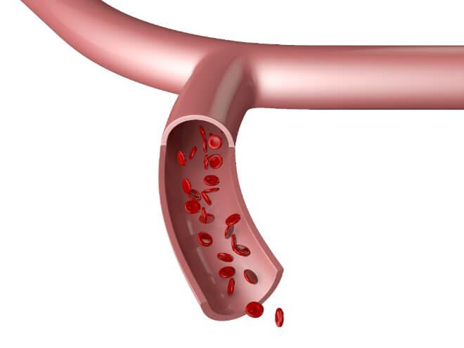 krvne-zile