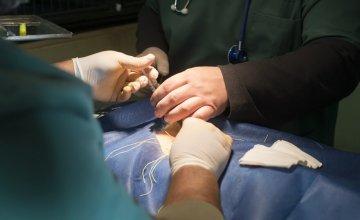 laparoskopska operacija slijepog crijeva