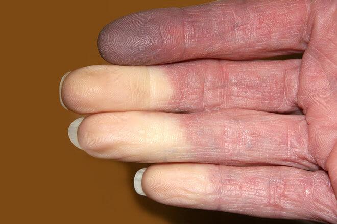Plavljenje kože zbog niskog kisika