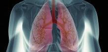 pleuralni izljev - pluca