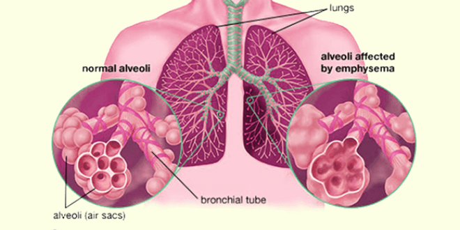 Pluća kod emfizema