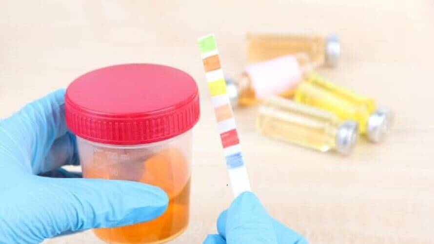 Pretraga proteina u urinu