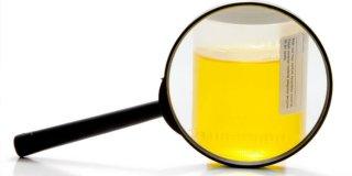 Amilaza u urinu – referentne vrijednosti, uzroci i dijagnoza