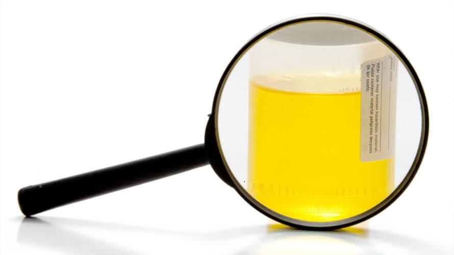 Pretraga urina