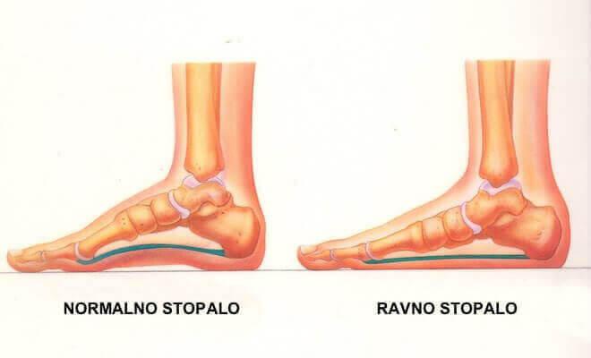 ralika između normalnog i ravnog stopala