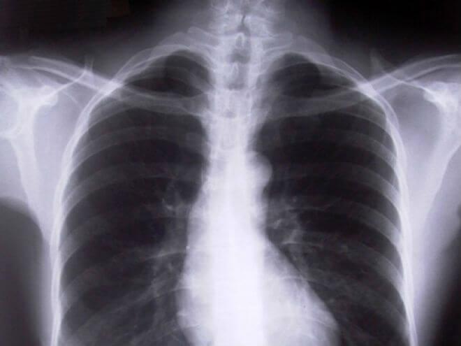 rtg pluća