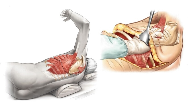 torakotomija