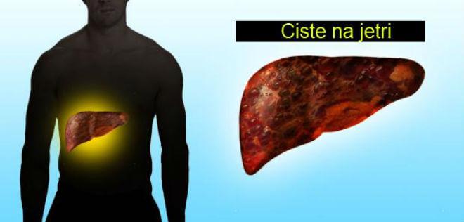Više cisti na jetri