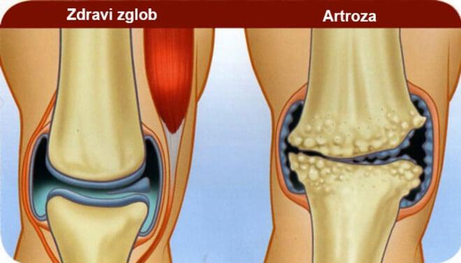 artroza koljena forum)
