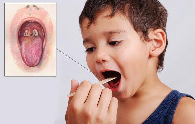 Difterija kod djece