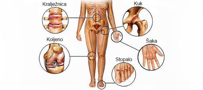 mjesta pojave artroze